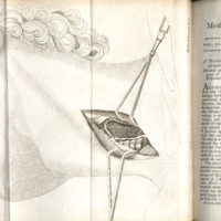 Medical and physical journal, vol. 6 August 1801, no. xxx, plate (between p. 96 & 97) description of oesophagotomy.jpg