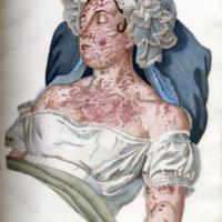 Alibert, Jean-Louis-Marie, 1768-1837,Clinica del Parigino Spedale di S. Luigi ossia trattato compiuto delle malattie della pelle (Simm f RL61 ALIB) - Plate 12.jpg