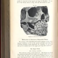 American textbook of operative denistry p484.jpg