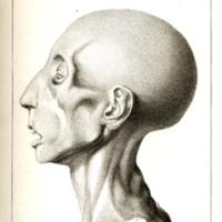 Esquirol, Etienne, Des maladies mentales Atlas - Plate V (Plate Cut).jpg