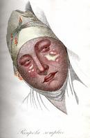 Clinica del Parigino Spedale di S. Luigi ossia trattato compiuto delle malattie della pelle / traduzione italiana di M.G. Levi
